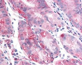 Immunohistochemistry (Formalin/PFA-fixed paraffin-embedded sections) - Anti-TMEM33 antibody (ab118435)