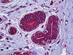 Immunohistochemistry (Formalin/PFA-fixed paraffin-embedded sections) - Anti-ATP5A antibody (ab118482)