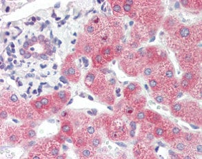Immunohistochemistry (Formalin/PFA-fixed paraffin-embedded sections) - Anti-SYVN1/HRD1 antibody (ab118483)