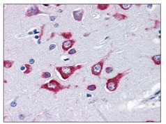 Immunohistochemistry (Formalin/PFA-fixed paraffin-embedded sections) - Anti-KIF5A antibody (ab118534)