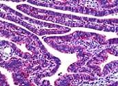 Immunohistochemistry (Formalin/PFA-fixed paraffin-embedded sections) - Anti-OVGP1/OGP antibody (ab118590)