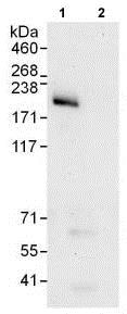 Immunoprecipitation - Anti-INO80 antibody (ab118787)