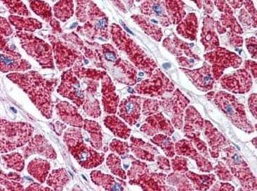Immunohistochemistry (Formalin/PFA-fixed paraffin-embedded sections) - Anti-VDAC2 antibody (ab118872)