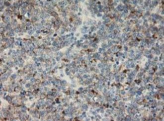 Immunohistochemistry (Formalin/PFA-fixed paraffin-embedded sections) - Anti-LIM Kinase 1 antibody [OTI3G3] (ab119084)