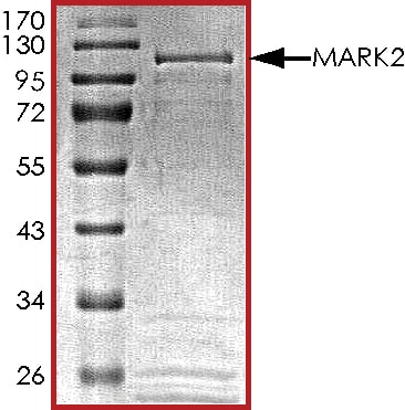 SDS-PAGE - Recombinant human MARK2 protein (ab119135)