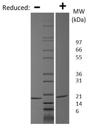 SDS-PAGE - Recombinant human IL-1 alpha protein (ab119165)