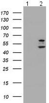 Western blot - Anti-PHF21B antibody [OTI3D1] (ab119249)