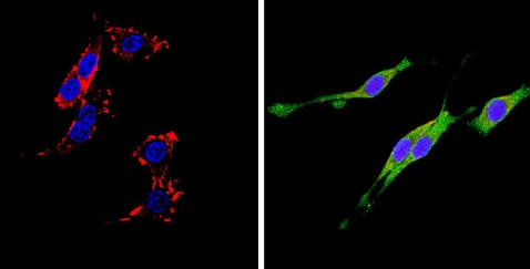 Immunocytochemistry/ Immunofluorescence - Anti-CD26 antibody [236.3] (ab119346)