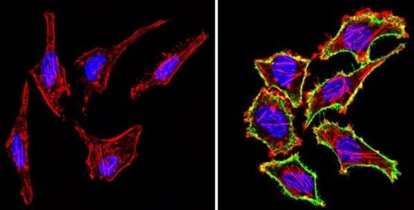 Immunocytochemistry/ Immunofluorescence - Anti-CD44 antibody [1M7.8.1] (ab119348)
