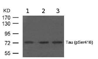 Western blot - Anti-Tau (phospho S416) antibody (ab119391)