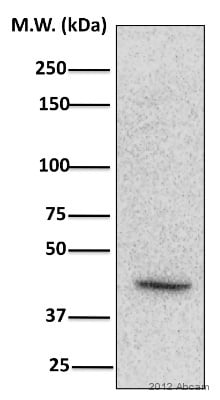 Western blot - Anti-CSNK2A1 (phospho T360 + S362) antibody (ab119410)