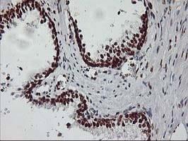 Immunohistochemistry (Formalin/PFA-fixed paraffin-embedded sections) - Anti-RASSF1 antibody [OTI8E4] (ab119423)
