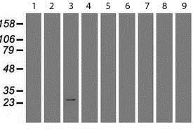 Western blot - Anti-RGS16 antibody [OTI4E5] (ab119424)