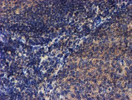Immunohistochemistry (Formalin/PFA-fixed paraffin-embedded sections) - Anti-LECT2 antibody [OTI2A11] (ab119429)