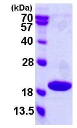 SDS-PAGE - Recombinant Human p18 INK4c/CDKN2C protein (ab119460)