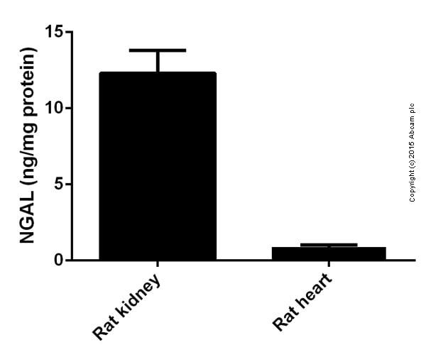 Sandwich ELISA - ab119602 Lipocalin-2 Rat
