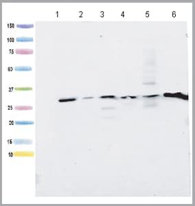 Western blot - Anti-ATP5C1 antibody [2A1AA11] (ab119686)
