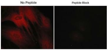 Immunocytochemistry/ Immunofluorescence - Anti-CORO1B (phospho S2) antibody (ab119705)