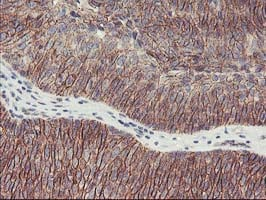 Immunohistochemistry (Formalin/PFA-fixed paraffin-embedded sections) - Anti-15 Lipoxygenase 1 antibody [OTI3G8] (ab119774)