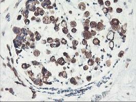 Immunohistochemistry (Formalin/PFA-fixed paraffin-embedded sections) - Anti-PFKP antibody [OTI1D6] (ab119796)
