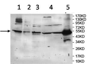 Western blot - Anti-TRIM21/SS-A antibody (ab119895)