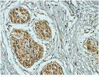 Immunohistochemistry (Formalin/PFA-fixed paraffin-embedded sections) - Anti-Rab18 antibody (ab119900)