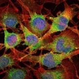 Immunocytochemistry/ Immunofluorescence - Anti-Smad2 antibody [5G7] (ab119907)