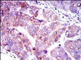 Immunohistochemistry (Formalin/PFA-fixed paraffin-embedded sections) - Anti-Smad2 antibody [5G7] (ab119907)