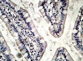Immunohistochemistry (Formalin/PFA-fixed paraffin-embedded sections) - Anti-TPC2 antibody (ab119915)
