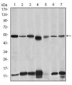 Western blot - Anti-IRAK4 antibody [2H9] (ab119942)