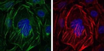 Immunocytochemistry/ Immunofluorescence - Anti-alpha smooth muscle Actin antibody [4A4] (ab119952)