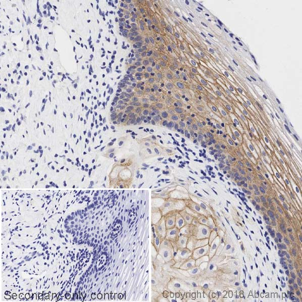 Immunohistochemistry (Formalin/PFA-fixed paraffin-embedded sections) - Anti-gamma Catenin antibody [15F11] (ab12083)