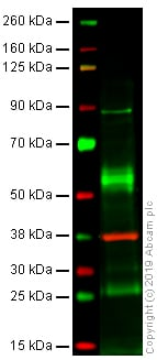 Western blot - Anti-gamma Catenin antibody [15F11] (ab12083)