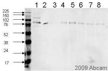 Western blot - Anti-PSD95 antibody (ab12093)