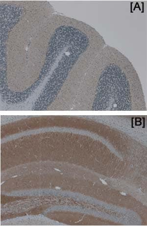 Immunohistochemistry (Formalin/PFA-fixed paraffin-embedded sections) - Anti-PSD93 antibody (ab12097)