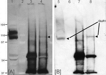 Western blot - Anti-Glutamate Receptor 1 (AMPA subtype) (phospho T840) antibody (ab12108)