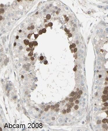 Immunohistochemistry (Formalin/PFA-fixed paraffin-embedded sections) - Anti-Geminin antibody (ab12147)