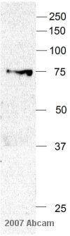 Western blot - Anti-FOXO3A antibody - ChIP Grade (ab12162)