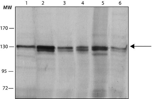 Western blot - Anti-HDAC4 antibody [HDAC-144] (ab12171)