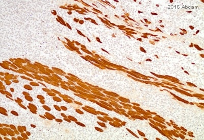 Immunohistochemistry (Formalin/PFA-fixed paraffin-embedded sections) - Anti-HDAC4 antibody (ab12172)
