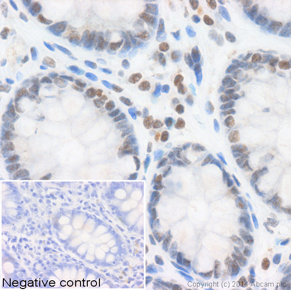 Immunohistochemistry (Formalin/PFA-fixed paraffin-embedded sections) - Anti-Histone H3 (acetyl K9) antibody [AH3-120] - ChIP Grade (ab12179)