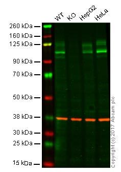 Western blot - Anti-Amyloid Precursor Protein antibody [DE2B4] (ab12266)