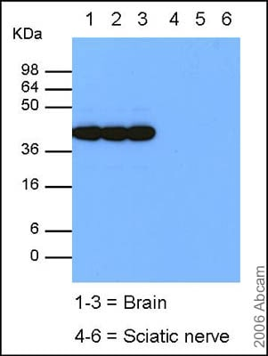 Western blot - Anti-GAP43 antibody - Neuronal Marker (ab12274)