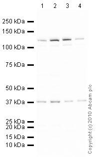 Western blot - Anti-Cdc4 / Fbw7 / hSel 10 antibody (ab12292)