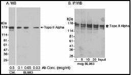 Immunoprecipitation - Anti-Topoisomerase II alpha antibody (ab12318)
