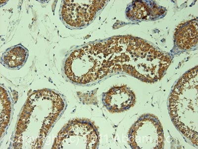 Immunohistochemistry (Formalin/PFA-fixed paraffin-embedded sections) - Anti-DIAPH2/DIA antibody (ab12319)