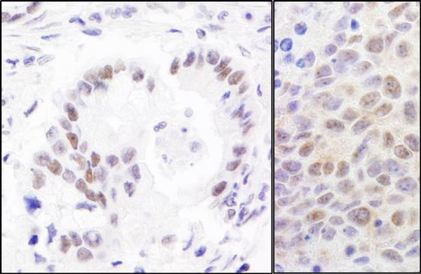 Immunohistochemistry (Formalin/PFA-fixed paraffin-embedded sections) - Anti-RPA70 antibody (ab12320)
