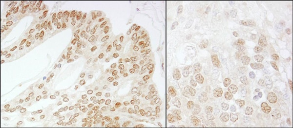 Immunohistochemistry (Formalin/PFA-fixed paraffin-embedded sections) - Anti-JAB1 antibody (ab12323)