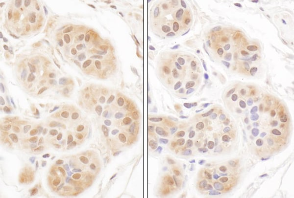 Immunohistochemistry (Formalin/PFA-fixed paraffin-embedded sections) - Anti-FHL2 antibody (ab12328)