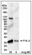 Western blot - Anti-FHL2 antibody (ab12328)
